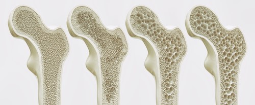 Olive Oil And Osteoporosis