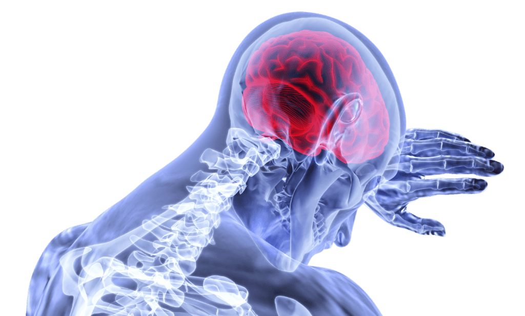 Reduced Risk Stroke From Plant Based Diet